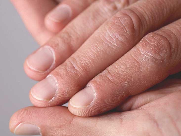 Repair Dry Cracked Hands